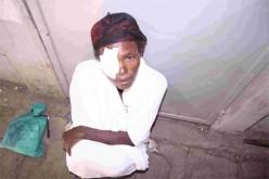 Bild på en man med en kompress som täcker höger öga