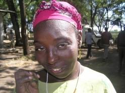 Bild på en kvinna med behandlad trakom